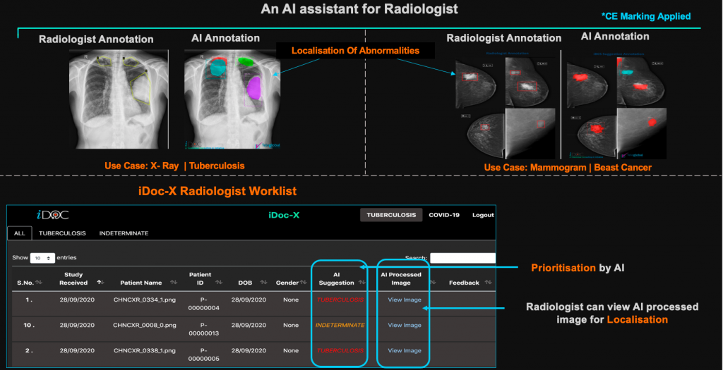 AI solution for CXRs (Chest X-Rays)